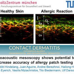28 April 2020: New INNODERM publication in Contact Dermatitis